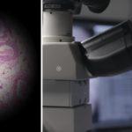 В Google создали микроскоп для диагностики рака